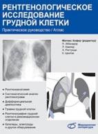 Рентгенологическое исследование грудной клетки - Матиас Хофер - 2008 год -  ...