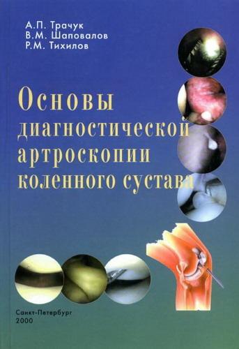 Основы диагностической артроскопии коленного сустава - Трачук А.П., Шаповал ...