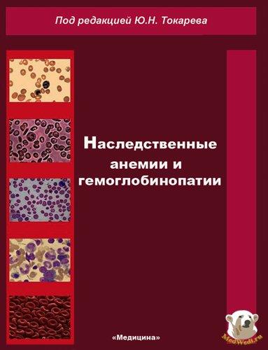 Наследственные анемии и гемоглобинопатии - Токарев Ю.Н. - 1983 год - 336 с.