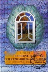 Клиническая электроэнцефалография - Зенков Л.Р. - 2004 год - 368 с.