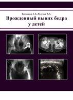 Врожденный вывих бедра у детей - Ерекешов А.Е. , Разумов А.А. - 2004 год