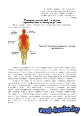 Гипертермический синдром - Горячева Л.В. - 29 с.