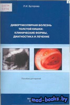 Дивертикулярная болезнь толстой кишки: клинические формы, диагностика и леч ...