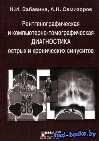 Рентгенографическая и компьютерно-томографическая диагностика острых и хрон ...