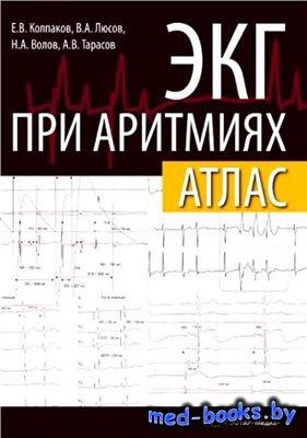 ЭКГ при аритмиях. Атлас - Е. В. Колпаков - 2013 год
