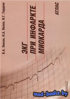 ЭКГ при инфаркте миокарда. Атлас - Люсов В.А., Волов Н.А., Гордеев И.Г. - 2 ...