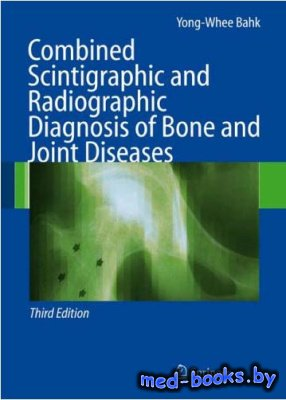 Combined Scintigraphic and Radiographic Diagnosis of Bone and Joint Disease ...