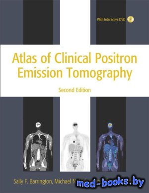 Atlas of Clinical Positron Emission Tomography - Barrington S. - 2005 год - ...