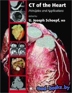 CT of the Heart. Principles and Applications - Schoepf U.J. - 2005 год
