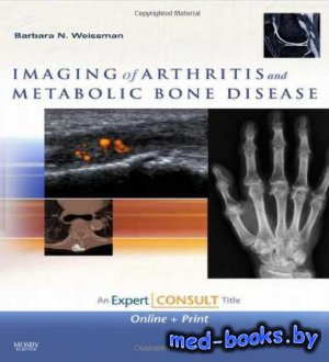 Imaging of Arthritis and Metabolic Bone Disease - Weissman B.N. - 2009 год