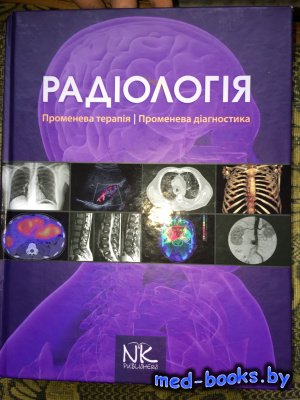 Радіологія. Променева терапія. Променева діагностика - Ковальський О.В., Ме ...