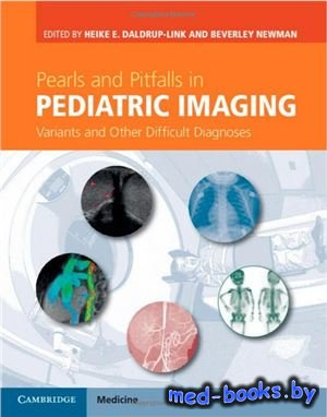 Pearls and Pitfalls in Pediatric Imaging - Daldrup-Link H., Newman B. - 2014 год