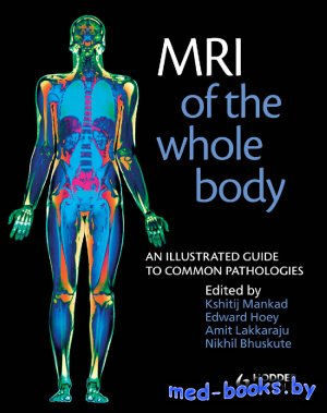 MRI of the Whole Body - Mankad K., Hoey E., Bhuskute N., Lakkaraju A. - 2011 год