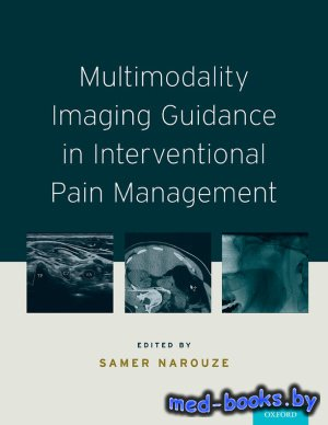 Multimodality Imaging Guidance in Interventional Pain Management - Narouze  ...