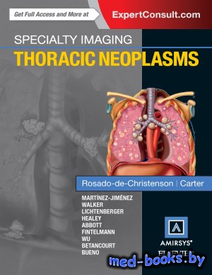 Specialty Imaging. Thoracic Neoplasms - Rosado-de-Christenson M. - 2016 год