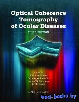Optical Coherence Tomography of Ocular Diseases - Schuman J.S., Puliafito C.A., Fujimoto J.G., Duker J.S. - 2013 год
