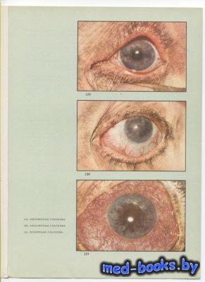 Атлас глазных болезней. В двух томах. Том 2 - Раднот М. - 1963 год