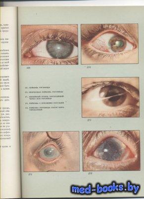 Атлас глазных болезней. В двух томах. Том 1 - Раднот М. - 1962 год