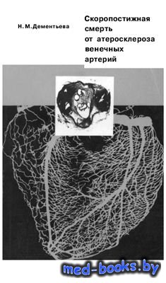Скоропостижная смерть от атеросклероза венечных артерий - Дементьева Н.М. - ...