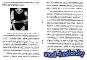 Диагностика и лечение хронических лимфатических отеков конечностей - Красав ...