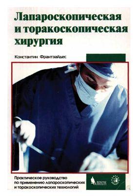 Лапароскопическая и торакоскопическая хирургия - Франтзайдес К. - 2000 год  ...