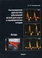 Ультразвуковая диагностика заболеваний ветвей дуги аорты и периферических с ...