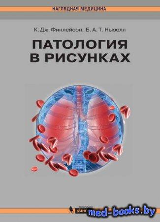 Патология в рисунках - Кэролайн Дж. Финлейсон, Барри А. Т. Ньюелл - 2014 год