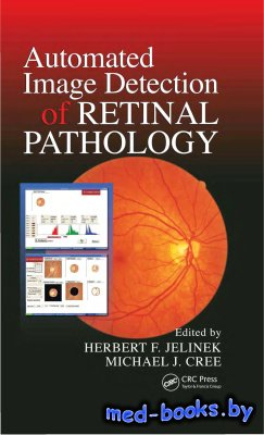 Automated Image Detection of Retinal Pathology - Jelinek H.F., Cree M.J. - 2010 год - 386 с.