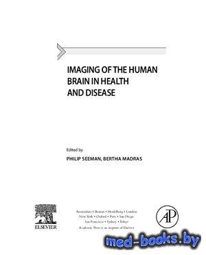 Imaging of the Human Brain in Health and Disease - Seeman P., Madras B. - 2014 год