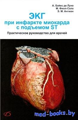 ЭКГ при инфаркте миокарда с подъемом ST - Байес де Луна А. - 2009 год
