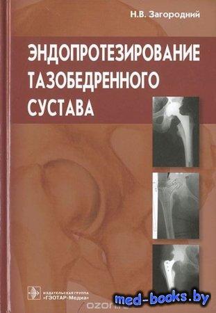 Эндопротезирование тазобедренного сустава - Н. В. Загородний - 2012 год