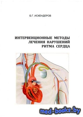 Интервенционные методы лечения нарушений ритма сердца - Искендеров Б.Г. - 2 ...