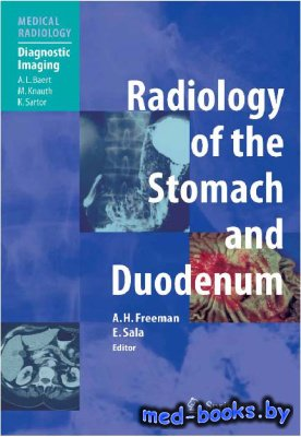 Radiology of the Stomach and Duodenum - Freeman A.H., Sala E. - 2008 год