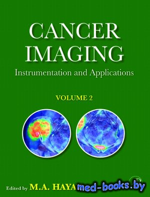 Cancer Imaging: Instrumentation and Applications, vol. 2 - Hayat M.A. - 200 ...