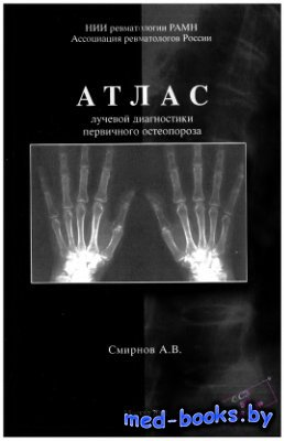 Атлас лучевой диагностики первичного остеопороза - Смирнов А.В. - 2011 год