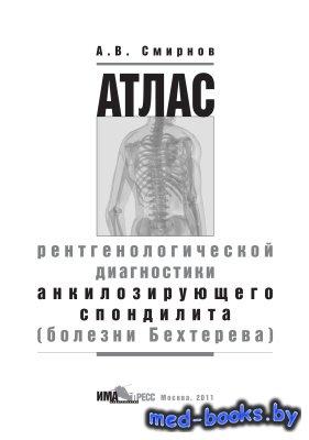Атлас рентгенологической диагностики анкилозирующего спондилита (болезни Бе ...