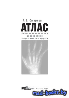 Атлас рентгенологической диагностики псориатрического артрита - Смирнов А.В ...