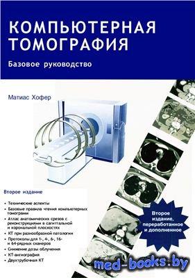 Компьютерная томография. Базовое руководство - Хофер Матиас - 2008 год