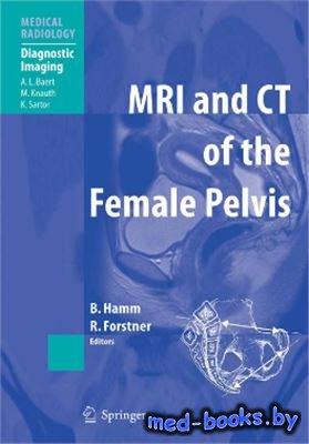 MRI and CT of the Female Pelvis - Hamm B., Forstner R. - 2007 год