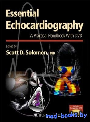 Essential Echocardiography: A Practical Handbook with DVD - Solomon Scott D ...