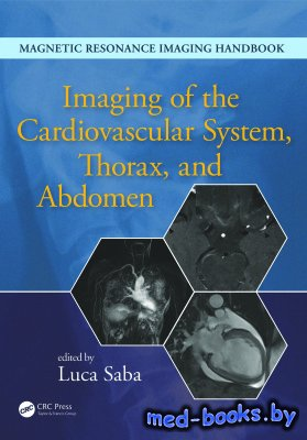 Imaging of the Cardiovascular System, Thorax, and Abdomen - Saba Luca - 201 ...