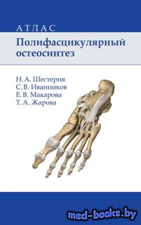 Полифасцикулярный остеосинтез. Атлас - Е. В. Макарова, Н. А. Шестерня, С. В ...