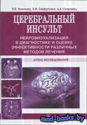Церебральный инсульт. Нейровизуализация в диагностике и оценке эффективност ...
