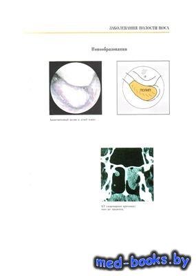 Атлас по оториноларингологии. Том 1. Нос и околоносовые пазухи - Томассин Д ...