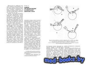 Микрохирургия глаза: ошибки и осложнения - Горбань А.И., Джалиашвили О.А. - ...
