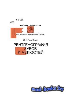 Рентгенография зубов и челюстей - Воробьев Ю.И. - 1989 год
