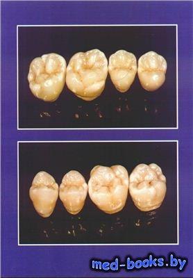 Атлас моделирования зубов - Копейкин В.Н.