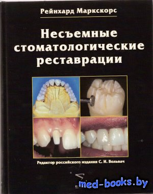 Несъемные стоматологические реставрации - Маркскорс Р. - 2007 год
