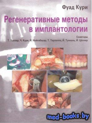 Регенеративные методы в имплантологии - Кури Фуад - 2013 год