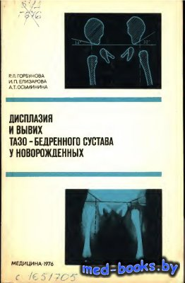 Дисплазия и вывих тазобедренного сустава у новорождённого - Горбунова Р.Л.  ...
